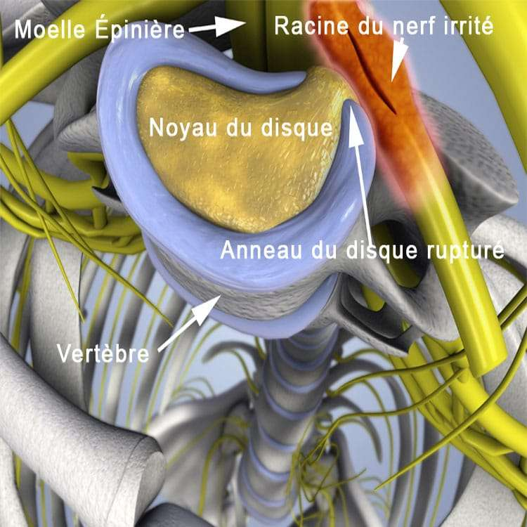 , Décompression neurovertébrale, Clinique Tagmed